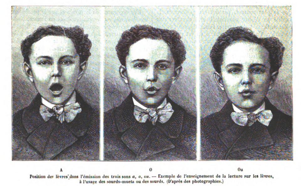 "Lip positions during articulation of the vowels A, O, and Ou, from: Felix Hement, ""Les progrès récents dans l'enseignement des sourds-muets"" (1885)"